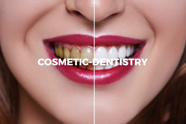 cosmetic-dentistry 2
