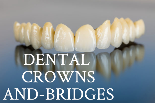 dental-crowns-and-bridges