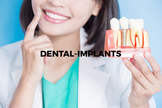 dental-implants 2