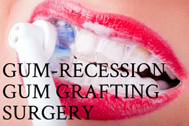 gum-recession-gum-grafting-surgery